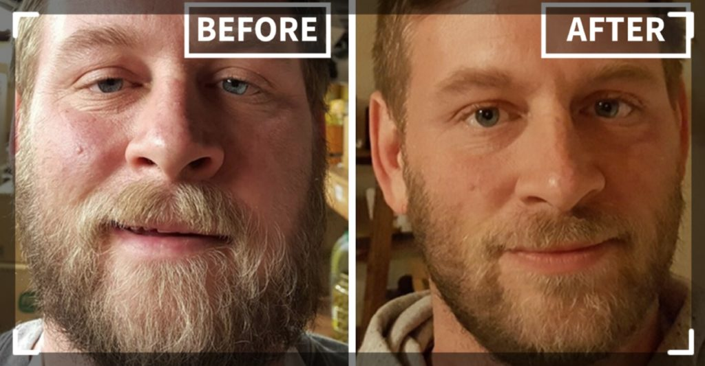 skin and alcohol before and after